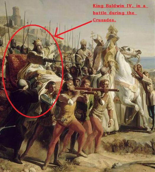 kingdom-of-heaven (character Baldwin IV) CLOSEUP painting depicting true essence of king in battle at Montgisard-Salles des Croisades2